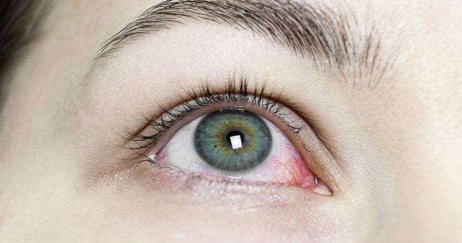 pęknięte naczynko w oku